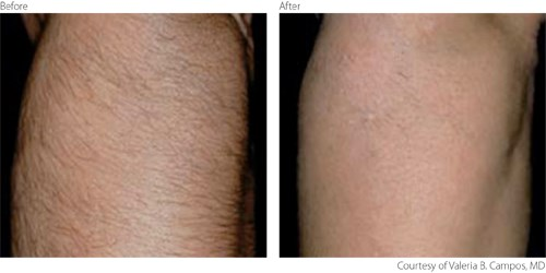 Laser Hair Removal Services Broomfield