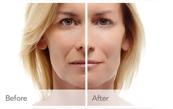 Radiesse® Injections for facial lines - Colorado Denver, CO